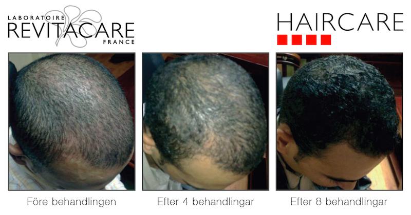behandling för håravfall